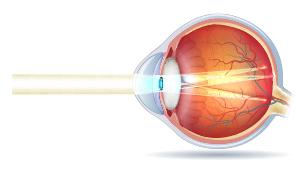 Tværsnit af øjeæble med bygningsfejl