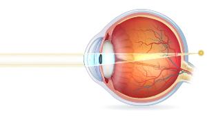 Tværsnit af øjeæble med gammelmandssyn
