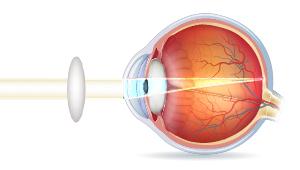 Tværsnt af øjeæble med korrigeret gammelmandssyn