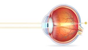 Tværsnit af øjeæblet ved langsynethed