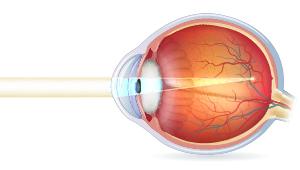 Tværsnit af øjeæble ved nærsynetet