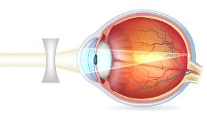 Tværsnit af øjeæble med korrigeret nærsynethed