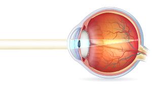 Normalt syn i et sundt øje